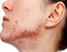 актиномикоз полости рта