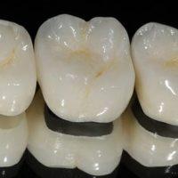 Ортопедическая стоматология с применением безметалловой керамики