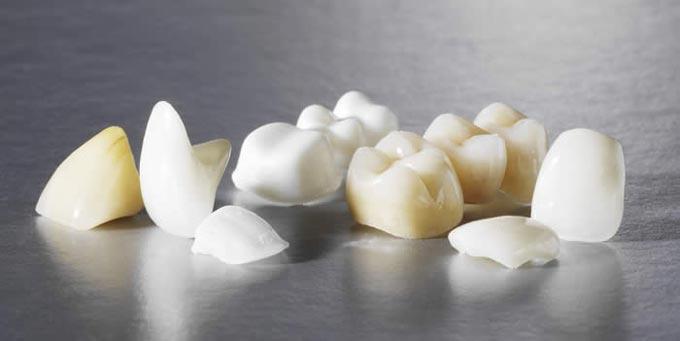 безметалловое протезирование