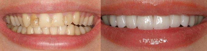 зона улыбки после безметаллового протезирования