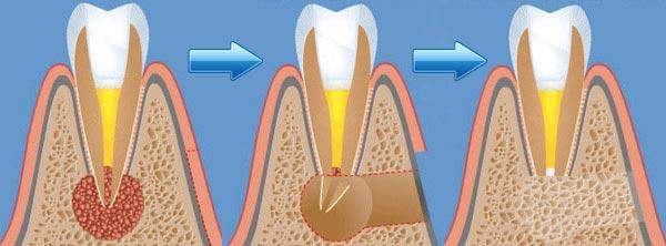 резекция корня зуба