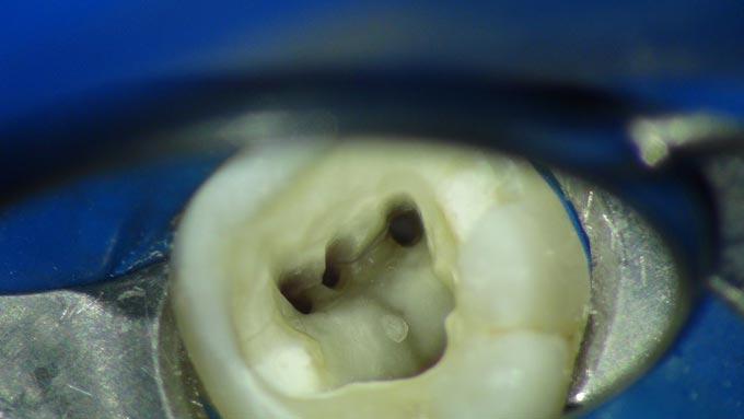 вскрытие каналов зуба