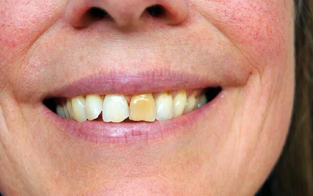 желтые пятна на зубах