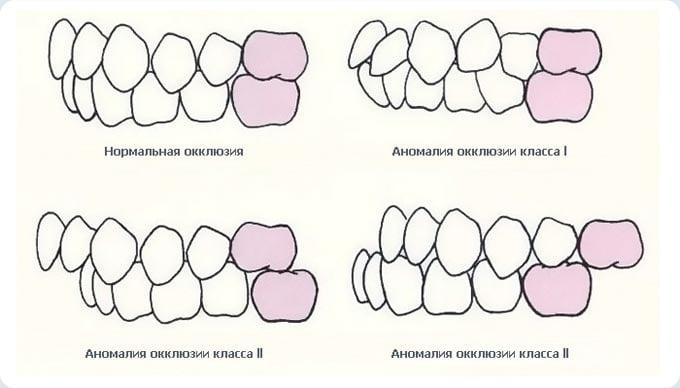 виды окклюзии