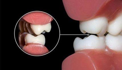 5 методов хирургической коррекции окклюзии