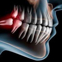 17 причин появления ретинированных зубов