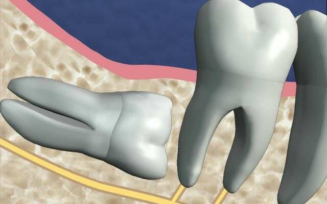 удаление ретинированного зуба