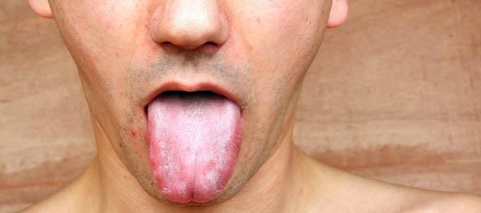белый налет на языке у взрослых