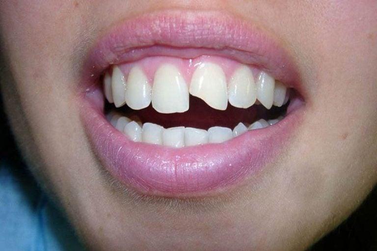 Зубы крошатся и выпадают без боли и крови.