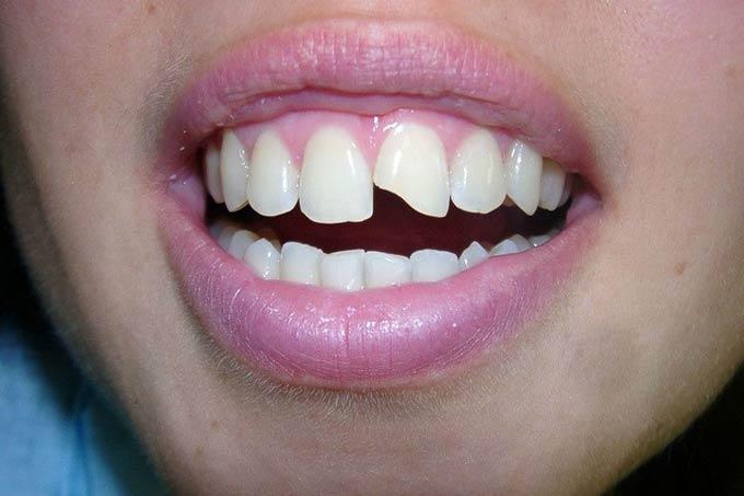 крошится передний зуб
