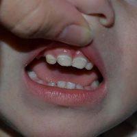Кариес у 1-2-летних детей, или «Бутылочный»