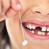 Нужно ли вырывать молочный зуб