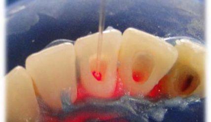 Основные этапы внутриканального отбеливания зубов