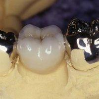 Плюсы протезирования штампованными коронками
