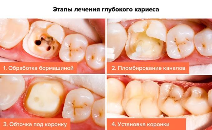 этапы лечения глубокого кариеса