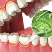 Действенные методы для укрепления зубов и прочности эмали