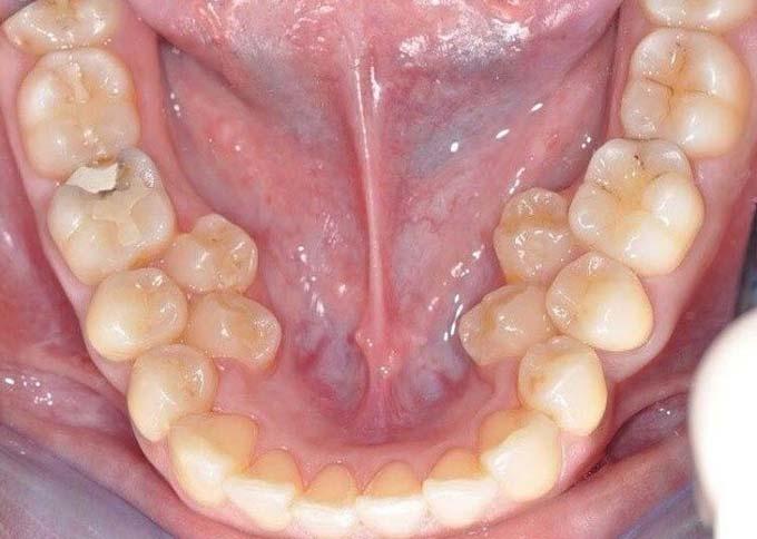 Гипердонтия нижней челюсти