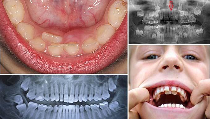 лишние зубы у ребенка