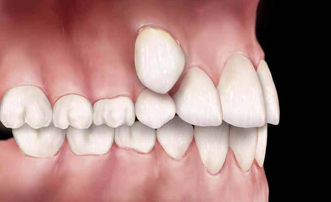 Виды зубов при гипердонтии