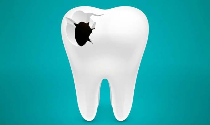 причины перфорации зуба