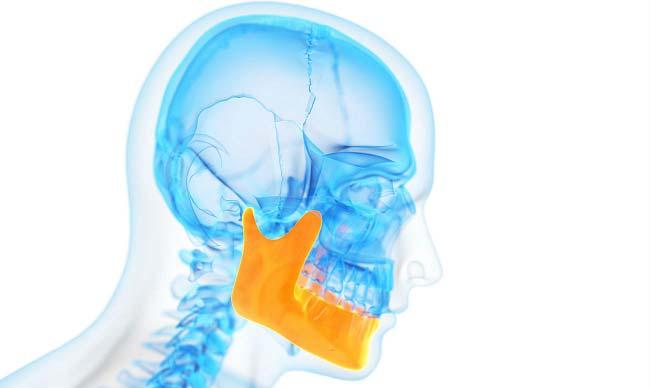 спазмы челюсти (тризм)