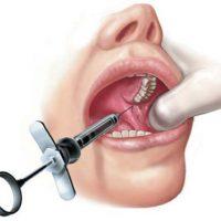 3 техники проведения торусальной анестезии