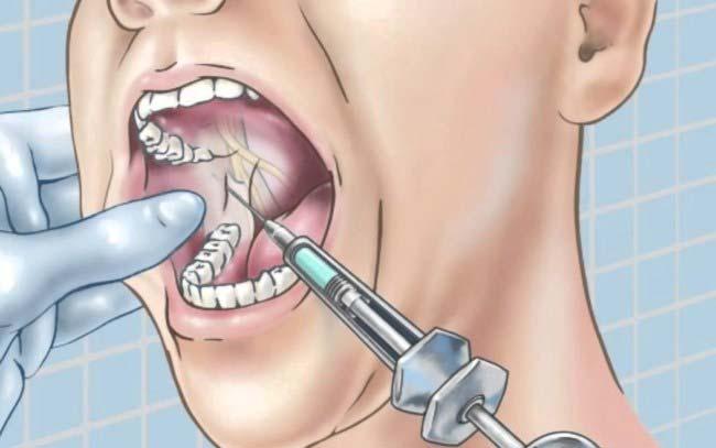 проведение мандибулярной анестезии