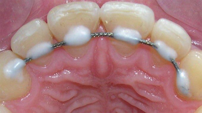 ретейнеры для зубов