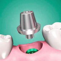 Виды абатментов — установка основы под зубной протез