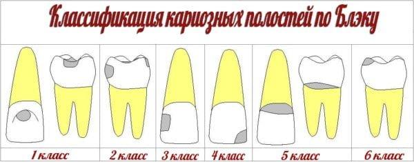 классификация по блэку
