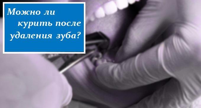 можно ли курить сразу после удаления зуба