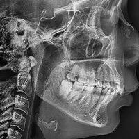 Частые вопросы о панорамном снимке зубов