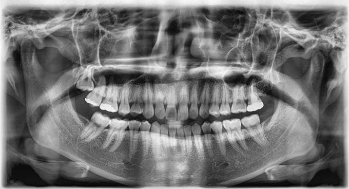 где сделать панорамный снимок зубов