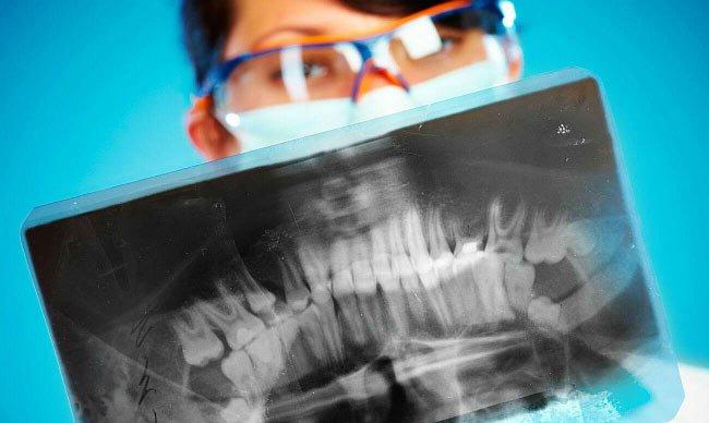 чтение снимка зубов