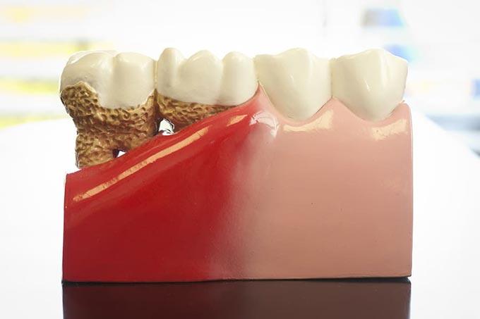 резорбция корня зуба
