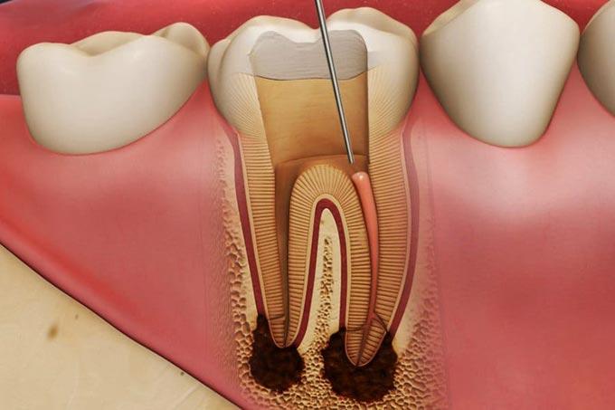лечение корневых каналов