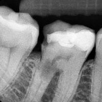 Причины внешней и внутренней резорбции корня зуба