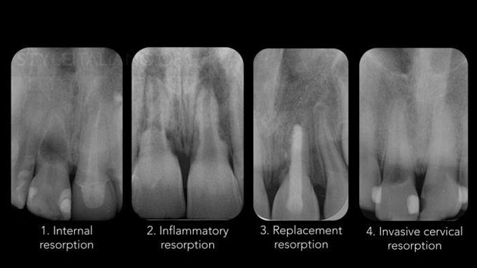 виды резорбции корня зуба