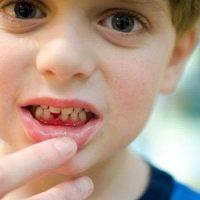 Лечение основных форм детского гингивита