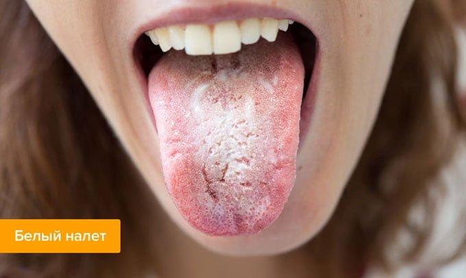 язык обложен белым налетом