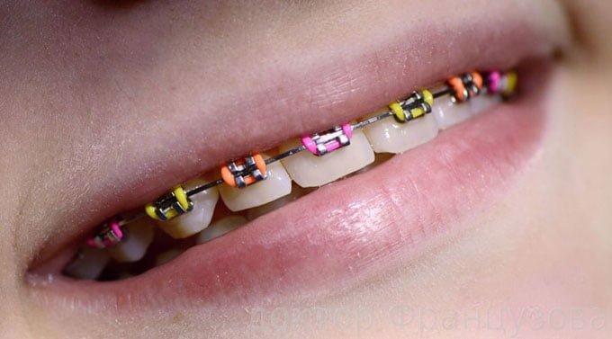 цветные брекеты для детей