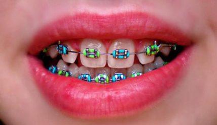 Ортодонтическое лечение цветными брекетами