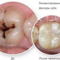 2 методики герметизации фиссур зубов у детей и взрослых