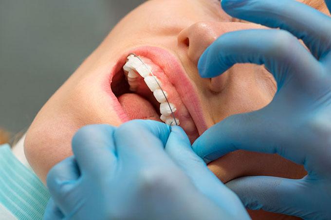 ортодонтический воск