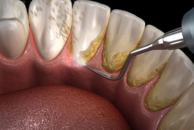 твердый зубной налет