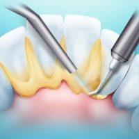 Разновидности зубного камня и методы его удаления
