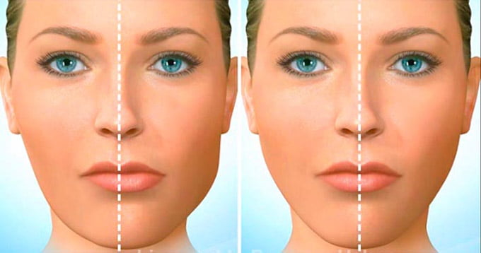 асимметрия лица при перекрестном прикусе