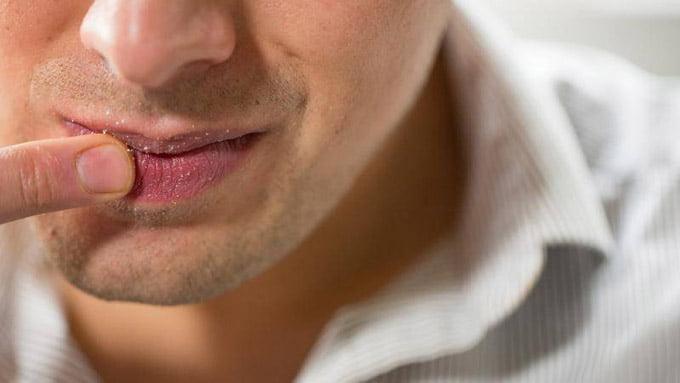 постоянный кислый привкус во рту
