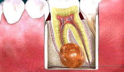 Причины возникновения и методы лечения кисты зуба