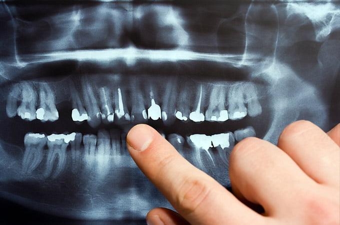 рентген у стоматолога
